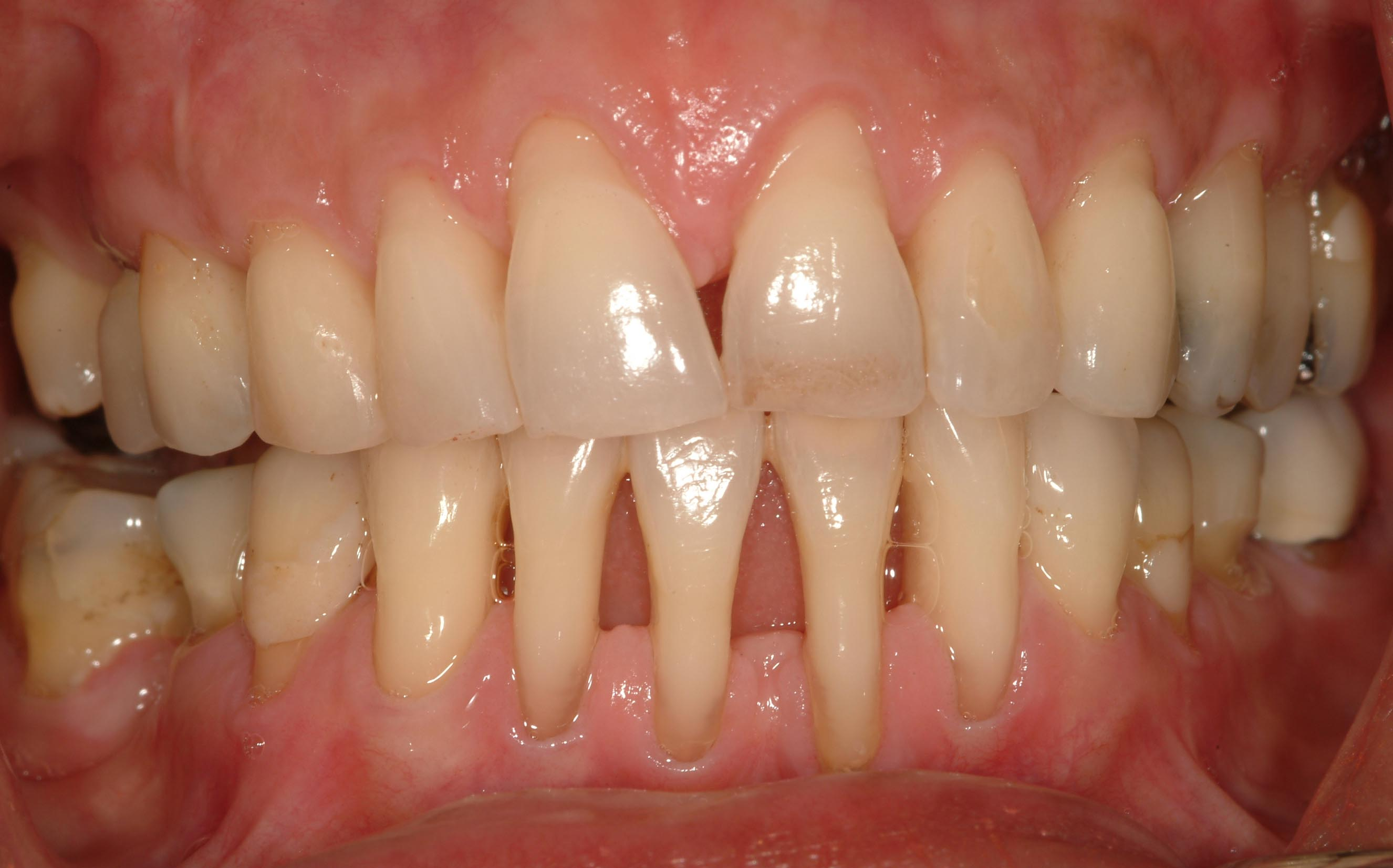 gum recession | Big Red Tooth - Dr Candice Schwartz